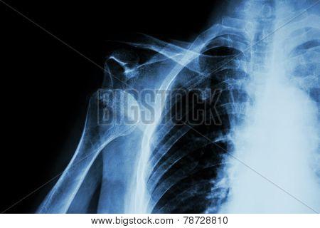 X-ray shoulder :  anterior shoulder dislocation
