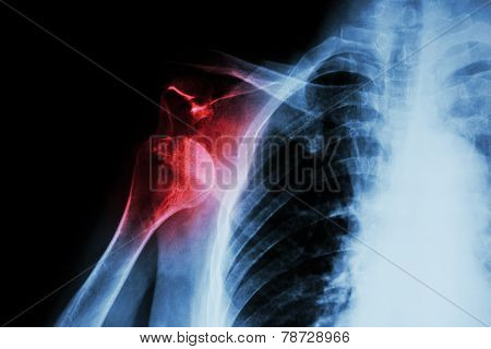 X - ray shoulder : show shoulder dislocation