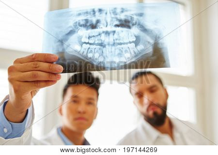 Doctors looking ad x-ray image and analyze oral surgery diagnose