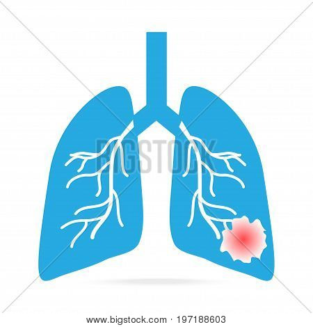 lung cancer blue icon medical concept illustration