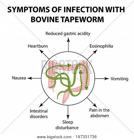 Symptoms of infection are bovine tapeworm. Infographics. Vector illustration on isolated background.