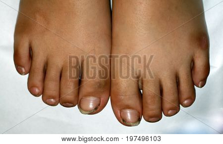 Nails on the feet, dirty. Ingrown toenails. Black dirty fingernails