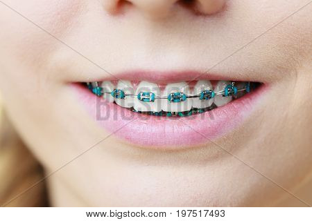 Closeup Of Woman Teeth With Braces