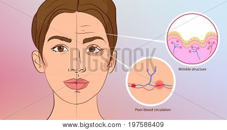 Premature wrinkles. Cosmetology. Aging of the skin, bruises under the eyes, infographic