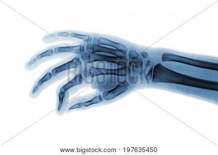 Film x-ray hand of child . Oblique view .