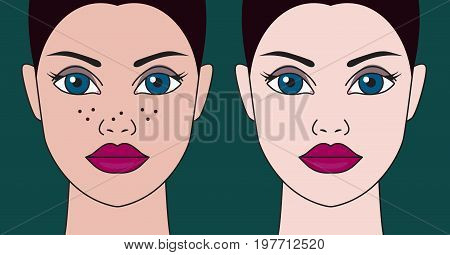 Whitening of face. Elimination of freckles and age spots. Girl before and after treatment. Vector illustration
