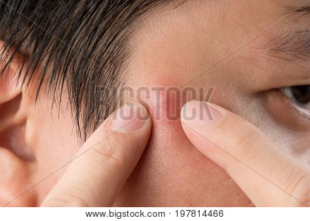 Close Up Photo Of Acne Prone Skin, A Man Squeezing His Pimple