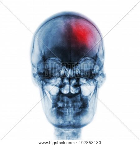 Stroke ( Cerebrovascular Accident ) . Film X-ray Skull Of Human With Red Area . Front View