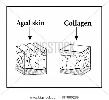 Schema of the skin under the influence of collagen. Old and collagen skin. Vector illustration of a sketch of a wrinkle on the skin. Smooth skin