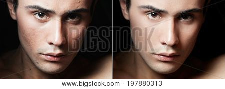 health people youth and beauty concept - Before and after cosmetic operation. Young man portrait isolated on a white background. Before and after cosmetic or plastic procedure anti-age therapy removal of acne retouching. studio shot