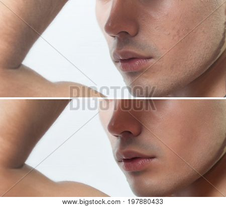Before And After Cosmetic Operation. Young Man Portrait