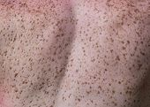 Close up of freckles on back of woman. Sensitive skin texture poster