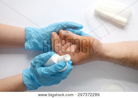 Doctors Hands Holding Male Hand With Bloody Gash On Big Finger. Doctor Examining Of The Patient. Pat