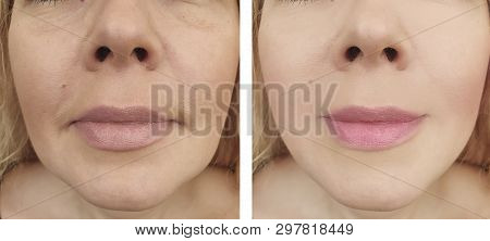 female eyes wrinkles before and after regeneration procedures poster