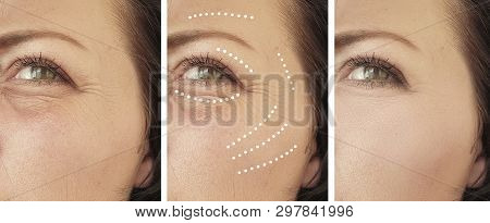 woman wrinkles before and after regeneration collage procedures poster
