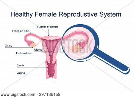 Healthy Female Reproductive System. Medical Schema With Uterus And Cervix Anatomy. Magnifying Glass