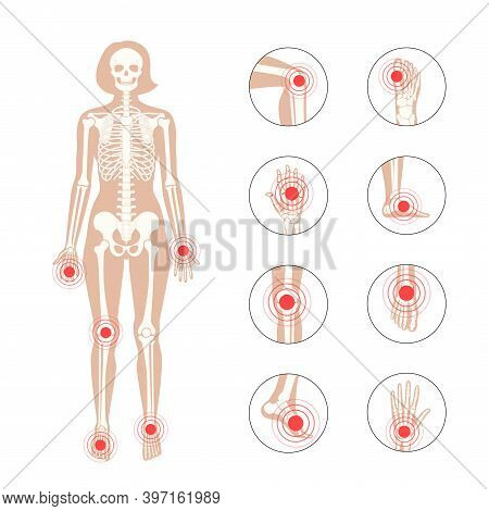 Pain In Female Human Body. Woman Skeleton Silhouette. Spine, Knee, Wrist And Other Joint Icons. Arth