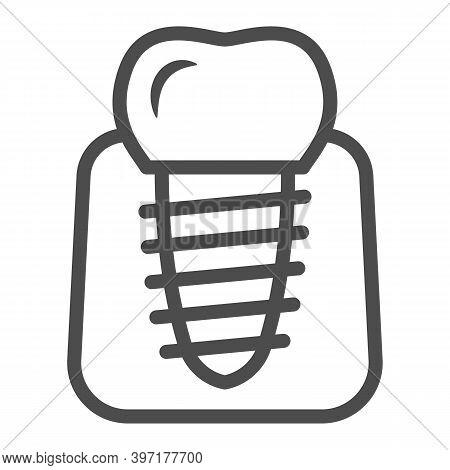 Dental Implant Line Icon, International Dentist Day Concept, Stomatology Of Implant Sign On White Ba