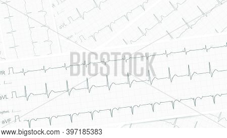 Ecg Vector Background With Several Paper Tape With Realism Cardiograms Showing Normal Sinus Rhythm F