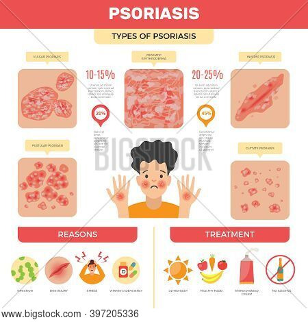 Psoriasis Infographic. Human Skin Infection Psoriasis Diagnosis Vector Medical Pictures. Care Skin,