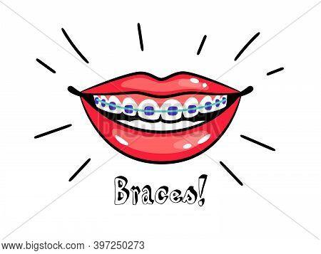 Orthodontic Braces. Cartoon Smile With Dental Braces, Correct Bite Of Teeth, Vector Illustration Of