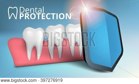 3d Dental Tooth Shield Caries Protection Template