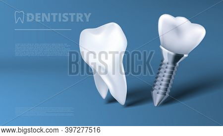 Healthy Tooth And Dental Implant Clinic Ad