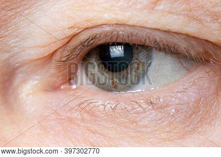 Macro Photo Of The Human Eye - Overhanging Upper Eyelid, Omitted Eyelid Ptosis, Tired Look Of The Ol