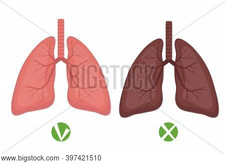 Healthy Lungs And Lungs Disease Or Smoker Infographics Isolated On White Background. Vector Illustra