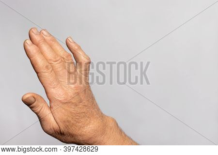 A Human Hand Brush On A Gray Background With Place For Text For Medicine And Traumatology. Ankylosis