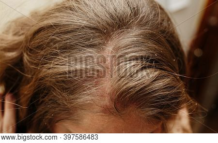 Psoriasis Vulgaris, Psoriatic Skin Disease In Hair, Skin Patches Are Typicaly Red, Itchy, And Scaly,
