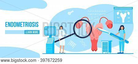 Hysteroscopy Of Uterus, Womb Concept Vector. Endometriosis, Endometrium Dysfunctionality, Removal Of
