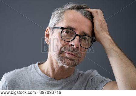 Balding Man Losing Hair. Checking Scalp Hair Loss