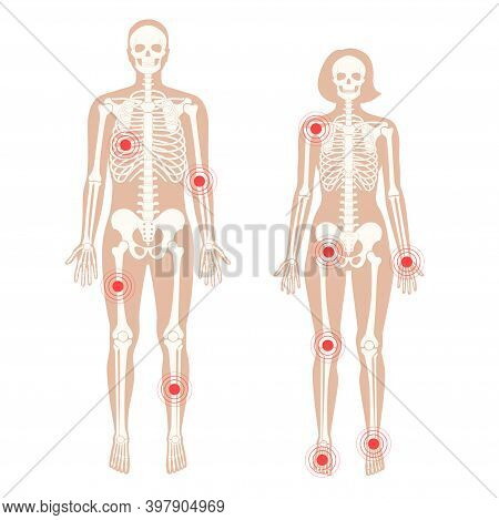 Pain In Human Body. Male And Female Skeleton Silhouette. Inflammation, Arthritis Or Fracture Of The