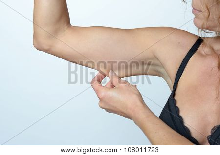 Middle Aged Woman Displaying The Loose Skin