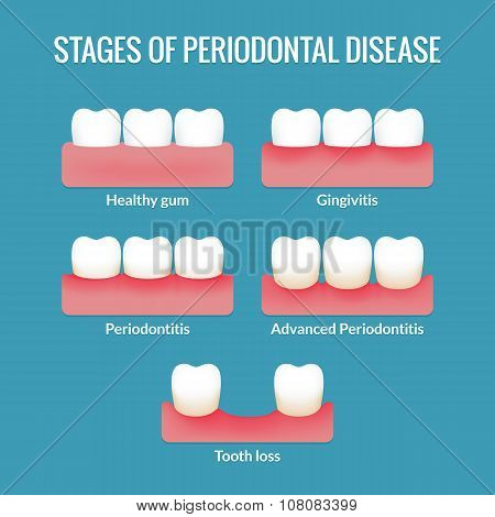 Periodontal Disease Chart