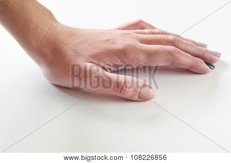 Female Hand With Gnawed Fingernail