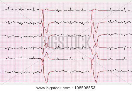 Tape Ecg With Ventricular Premature Beats (quadrigemini)