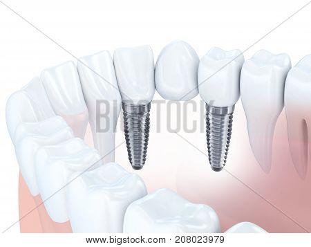 Dental human jaw and implant bridge. 3d illustration