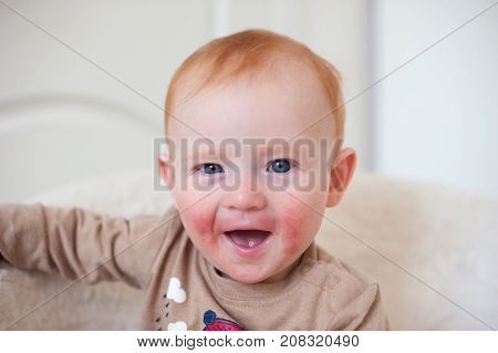 Beautiful redheaded child with atopic dermatitis on the face