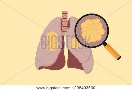 lung cancer with cancer cell on the lung and magnifying glass vector