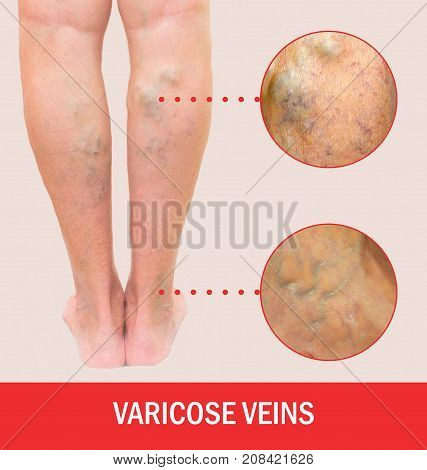 Painful varicose veins, ,spider veins, varices on a female leg. Ageing, old age disease, aesthetic problem concept.