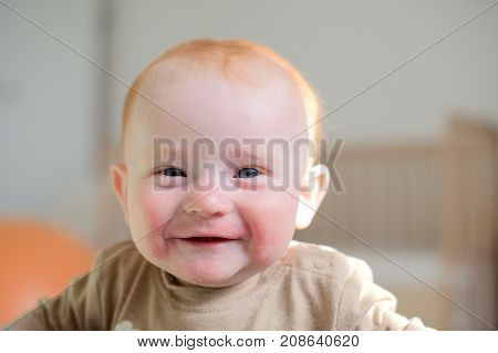 Beautiful redhead baby with atopic dermatitis smiling