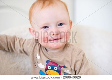 Red-haired boy with allergy - atopic dermatitis