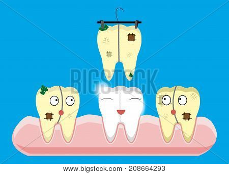 Set of teeth cleaning and whitening concepts. Scaler, laser, mechanical, paint. Cartoon vector dental illustration.