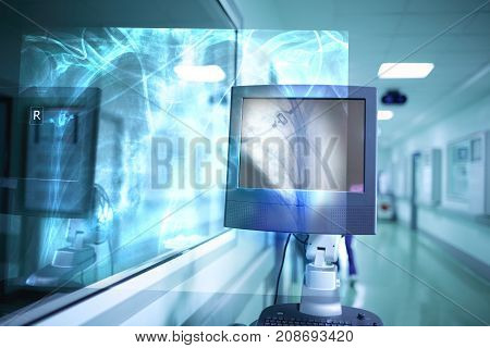 Visual projection of an x-ray image in the hospital.