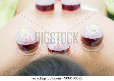 Hijama - The Treatment Of Bloodletting. Attached Vacuum Cup. Blood Fills In The Cup.