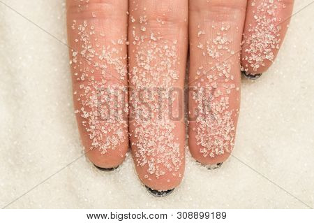 Women's Fingers On Which Stuck Grains Of Sugar Close-up