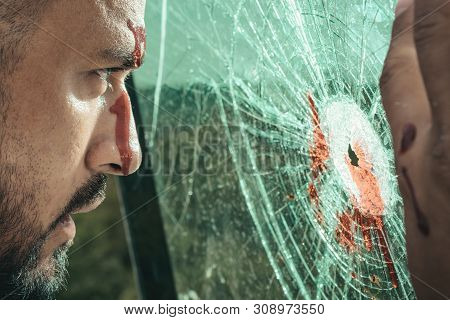 Surviving An Injury. Latino Man With Wound Injury Looking Through Broken Glass. Hispanic Man Bleedin