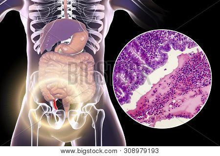 Acute Suppurative Appendicitis, 3d Illustration Of Human Body With Inflammed Appendix And Light Micr